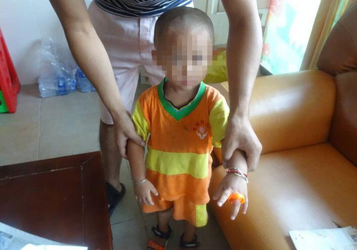 """【坦洲】2岁男童被塑料玩具""""咬""""手"""
