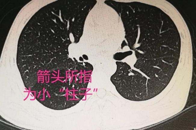 小伙吃饭时笑得太开心,竟导致肺脓肿!