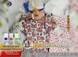 噩耗!四个月宝宝肺炎引发先心病 家庭困难举步维艰