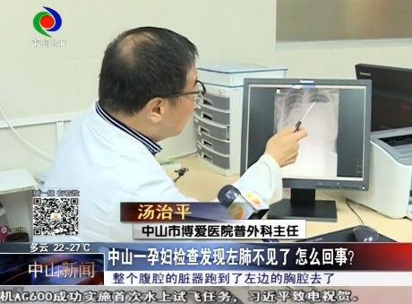 中山一孕妇检查发现左肺不见了 怎么回事?